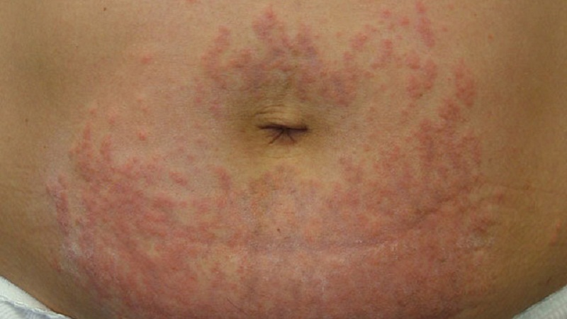 rash on the abdomen