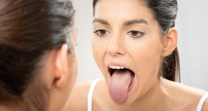 how to heal a burnt tongue and scalding