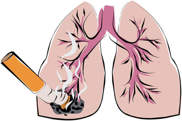 Death causes due to cigarette smoking