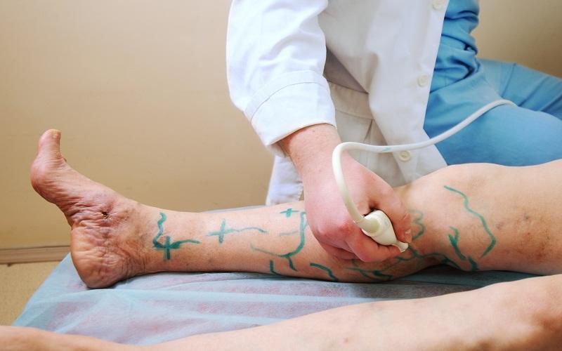 treat varicose veins