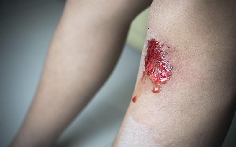 top Wound healing